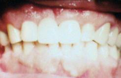 smile12b.png