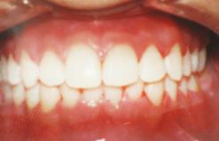 smile5b.png