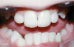 smile6a.png