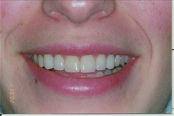 Teeth with Veneers in Grand Junction, CO