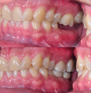 Correction of bite with Dental Implant' s on bottom and Full Porcelain Crown' s on top