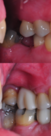 Side view with molar and premolar implants