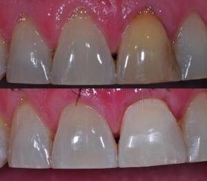 Internal Whitening and Tissue graft