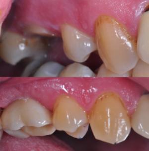 Denture over implants