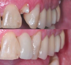 Icon Dental in Visalia CA
