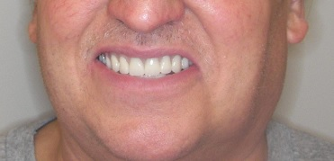 Dr.Levani DDS in North Canton OH