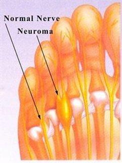 Birmingham Podiatrist | Birmingham Morton's Neuroma | AL | Alabama Foot Institute |