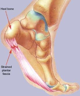 Birmingham Podiatrist | Birmingham Heel Pain/Fasciitis | AL | Alabama Foot Institute |