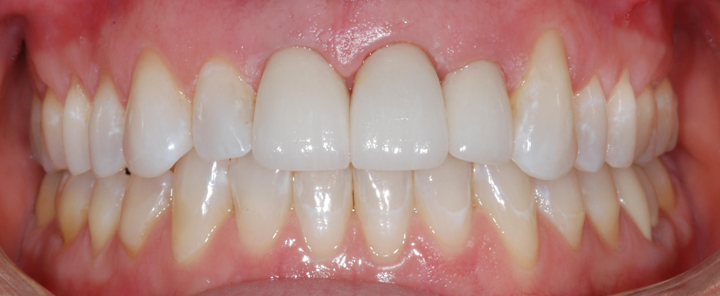 ortho_veneers_after.png