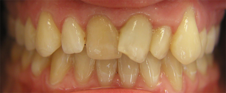 ortho_veneers_before.png
