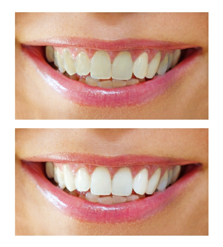 before_and_after_whitening.jpg