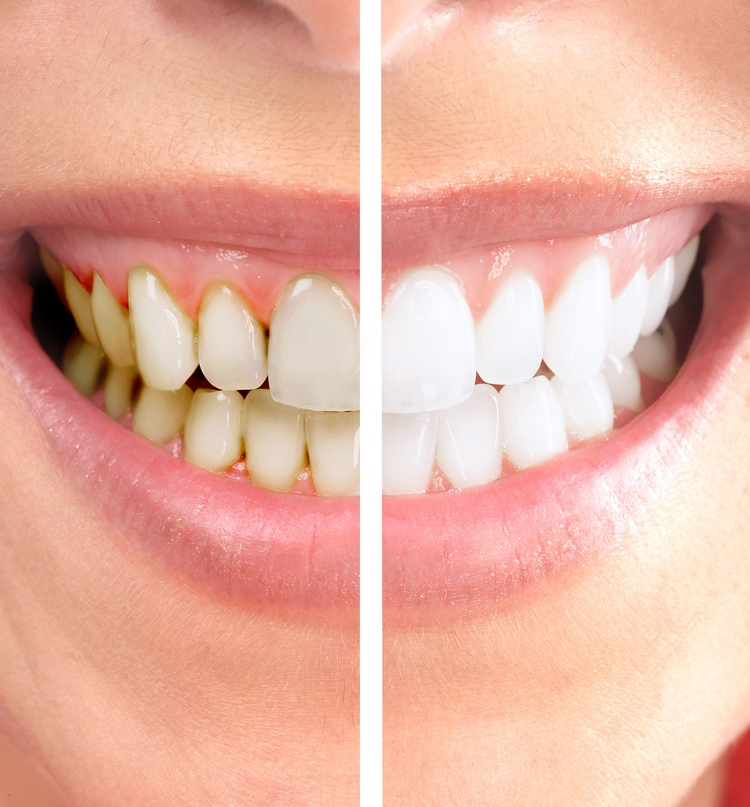 before_and_after_whitening_1.jpg