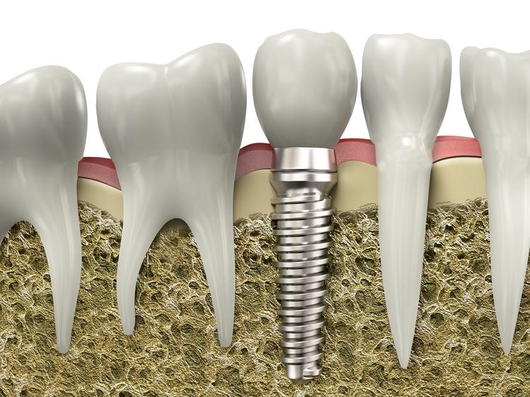 implant_1.jpg