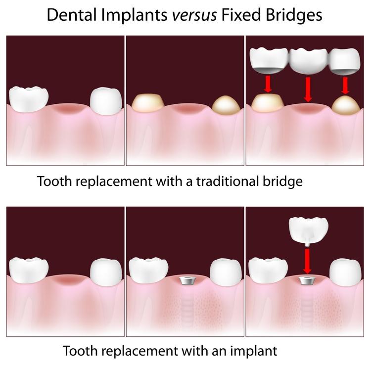 implants_vs_bridges.jpg