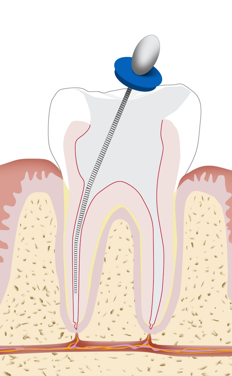 root_canal.jpg