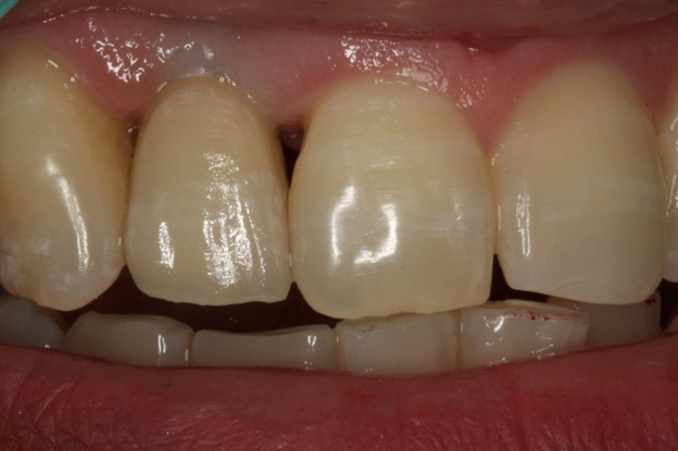 After, dental implant