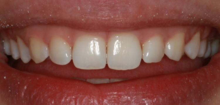 After, Invisalign