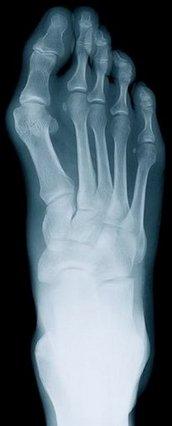 Gurnee Podiatrist | Gurnee Rheumatoid Arthritis | IL | Foot Mechanics of Lake County |