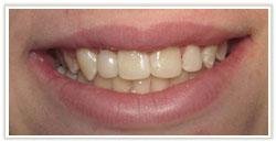 tooth_bonding1aft.jpg