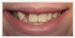 tooth_bonding1bef.jpg