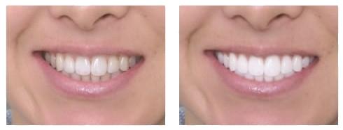 teeth_whitening.png