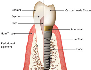 dental_implant.jpg
