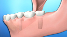 dental_implants_bridge2.jpg