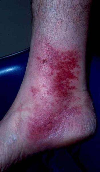 El Monte, CA  Podiatrist   El Monte, CA  Infections   CA   Advanced Foot & Ankle Institute  