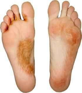 feet_itch.jpg