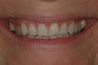 smile01_full_before.jpg