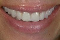 smile02_close_after.jpg