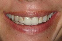 smile02_close_before.jpg