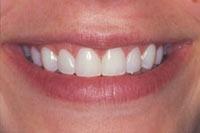 smile03_2_after.jpg
