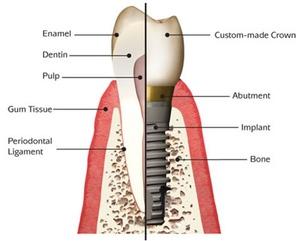 Dental Implant Explained
