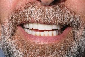 teethaf.jpg
