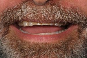 teethbef.jpg