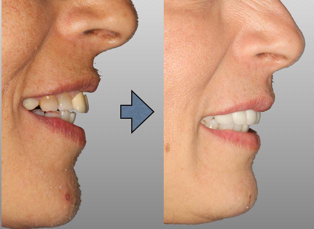 Fullerton Dentist | Dentist in Fullerton