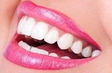 Gahanna Dentist | Dentist in Gahanna