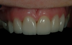 Powdersville Dental Case 1 After Photo