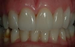 Powdersville Dental Case 1 After Photo
