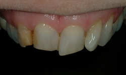 Powdersville Dental Case 1 Before Photo