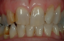 Powdersville Dental Case 1 Beforer Photo
