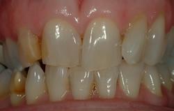 Powdersville Dental Case 1 Beforer Photo