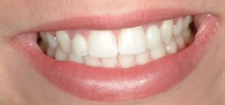 Powdersville Dental Case 3 After  Photo