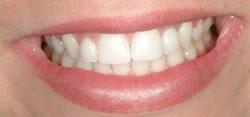 Powdersville Dental Case 3 After  Photo