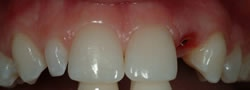 Powdersville Dental Case 3 Before Photo