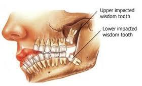 wisdom_tooth.jpg