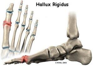 Acton Podiatrist | Acton Hallux Rigidus | MA | Acton Foot and Ankle Associates |
