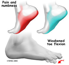 Acton Podiatrist | Acton Tarsal Tunnel Syndrome | MA | Acton Foot and Ankle Associates |