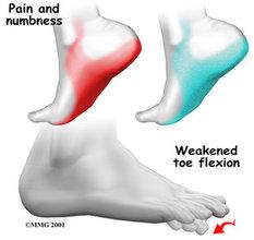 Acton Podiatrist | Acton Tarsal Tunnel Syndrome | MA | Acton Foot and Ankle Associates |